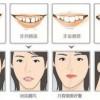 威海牙齿矫正需要注意的问题